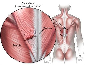 muscle straining from lower back pain