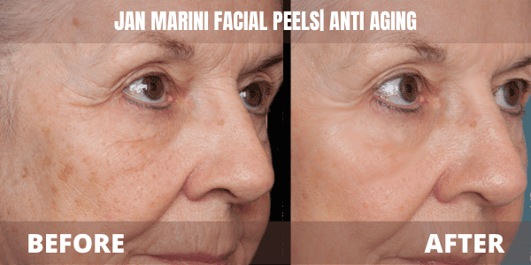Jan marini skincare before and after
