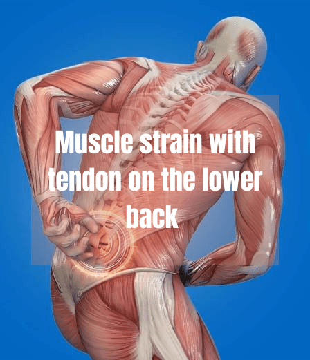 A brief on muscle strain with tendon on the lower back