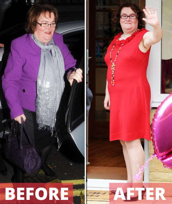 Susan Boyle before and after