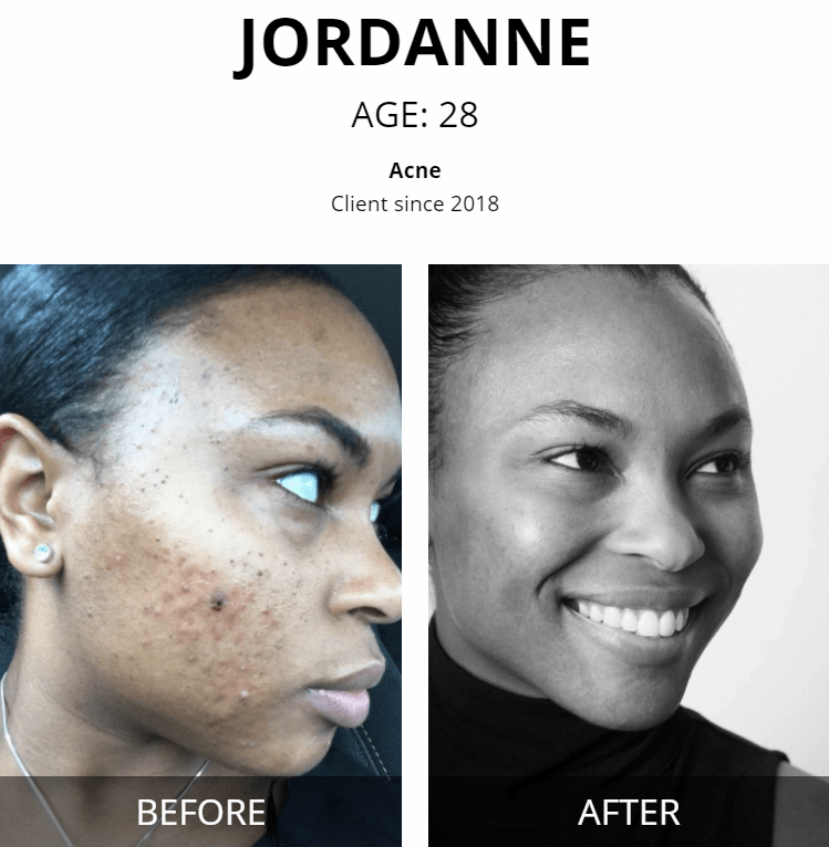 jordanne Vivant skincare before and after