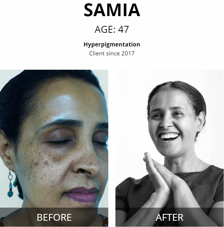 samia Vivant skincare before and after
